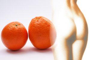 cellulit skórka pomarańczowa
